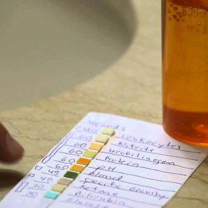 Combi Screen urine strips